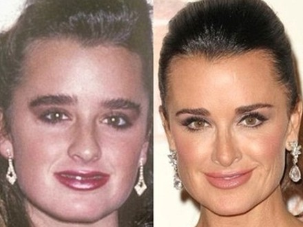 Kyle Richards Before and After Kyle Richards Before Plastic Surgery